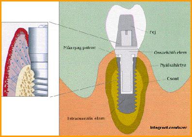 Implantátum átmetszeti kép